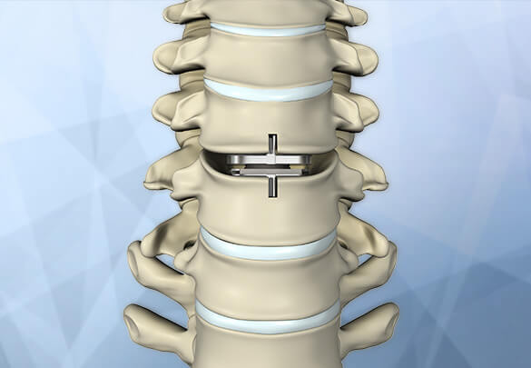 Cervical Disc Replacement